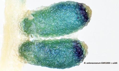 Quelle est la défense des nodules racinaires de légumineuses face aux infections pathogènes ?